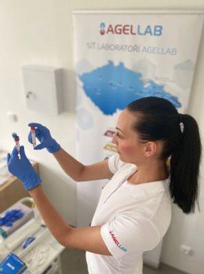 Máte senzitivitu na potraviny? Síť laboratoří AGELLAB nabízí vyšetření specifických IgG protilátek proti 287 potravinám